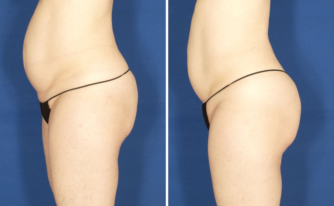 Before & After VelaShape Body Contouring